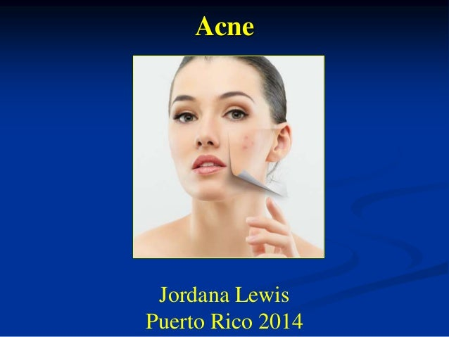 Tratamiento de acne e Piel Grasosa 2014