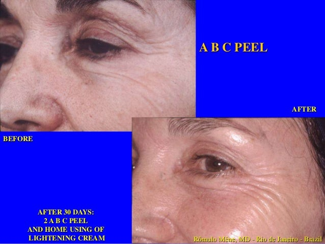 BEFORE  BEFORE  AFTER 3 MONTHS  6 ABC PEELS  Rômulo Mêne, MD - Rio de Janeiro - Brazil