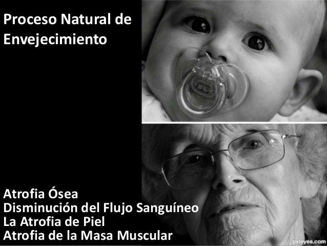 Proceso Natural de  Envejecimiento  Atrofia Ósea  Disminución del Flujo Sanguíneo  La Atrofia de Piel  Atrofia de la Masa ...