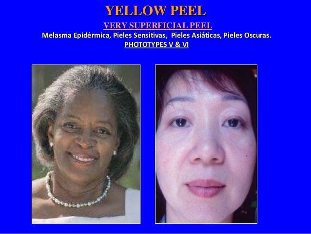 Very Superficial Peeling Protocol  • Indicado para: Melasma Epidérmica, Pieles Sensitivas, Pieles  Asiáticas, Pieles Oscur...