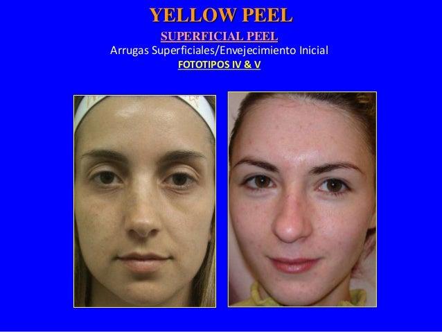 """Protocolo """"Peeling"""" Superficial  • Indicado para foto envejecimiento INICIAL.  • Fototipo IV & V  • Aplicar la crema amari..."""