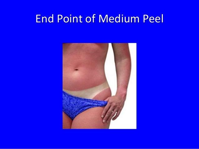Tratamiento Professional  Arrugas Medianas / Envejecimiento Mediano  Fototipo III  Yellow  Peel  4-8 Tratamientos  4-8 Mes...