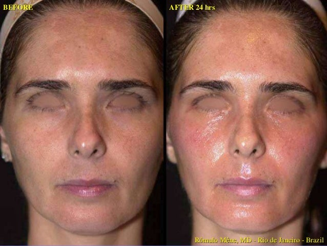BEFORE BEFORE  AFTER 48hrs WITH YELLOW PEEL AFTER 48hrs WITH YELLOW PEEL  Rômulo Mêne, MD - Rio de Janeiro - Brazil