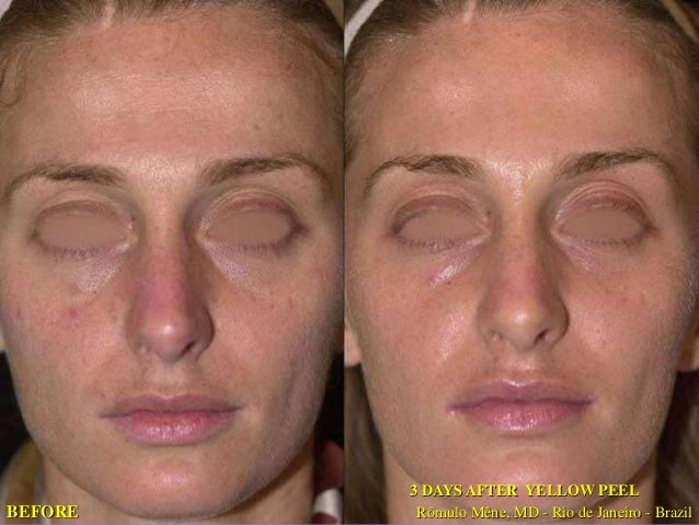 03-06-07 15-06-07  BEFORE 12 DAYS AFTER  YELLOW PEEL  12 DAYS AFTER  YELLOW PEEL  BEFORE  Rômulo Mêne, MD - Rio de Janeiro...