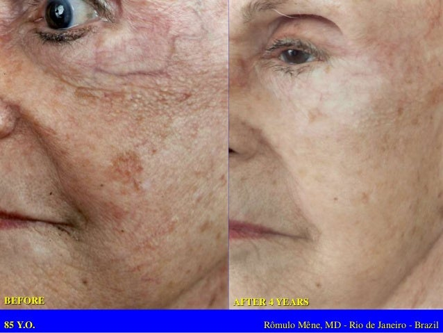 42 Y.O – 20  YEARS OF LOW  PROTEIN DIET  Rômulo Mêne, MD - Rio de Janeiro - Brazil  1 WEEK AFTER  (YELLOW PEEL AND  PROTEI...