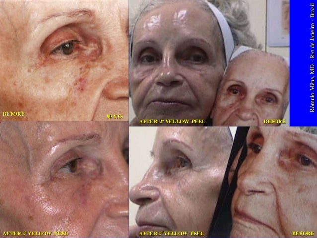 21 June 2001  30 March 2005  8 days after ABC PEEL/  YELLOW PEEL FACIAL  30 March 2005 30 March 2005  Rômulo Mêne, MD - Ri...