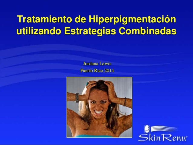 Tratamiento de Hiperpigmentación  utilizando Estrategias Combinadas  Jordana Lewis  Puerto Rico 2014