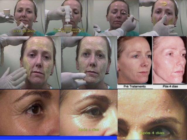 YELLOW PEEL Protocolo  Muy Superficial  • Indicado para: Melasma Epidérmica, Pieles Sensitivas, Pieles  Asiáticas, Pieles ...