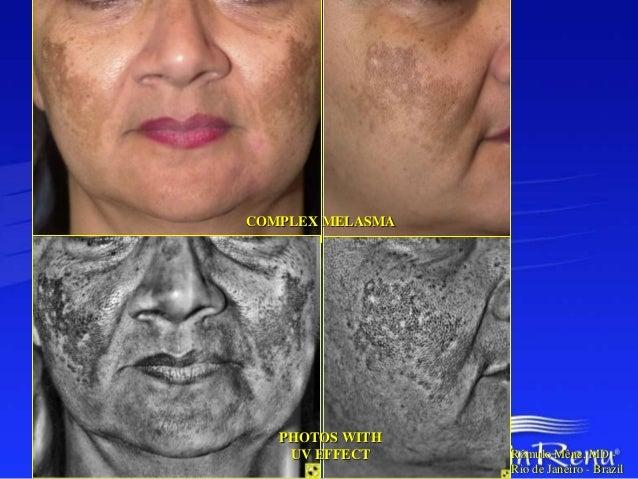 Professional Treatment  Hiperpigmentacion Superficial/  Pieles Sensibles  Fototipo IV & V  Yellow  Peel  1-3 Tratamientos ...