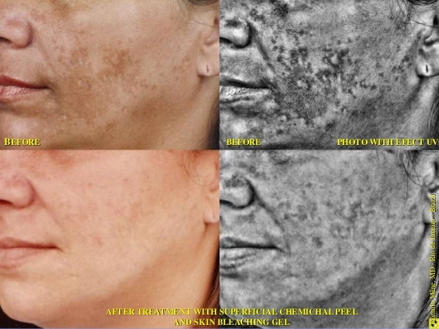 Fig. 1 Fig. 2  Fig 1. Pre-treatment.  Fig 2. Patient showing  crusts on the 4th day after  the application of YELLOW  PEEL...