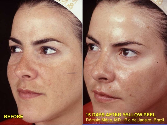 AFTER 6 YEARS  (YELLOW PEEL/LIGHTENING GEL)  Rômulo Mêne, MD - Rio de Janeiro - Brazil  BEFORE  BEFORE  PHOTOS WITH EFECT ...