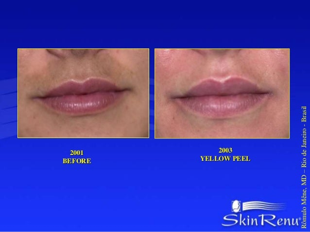 HIPERPIGMENTATION AND  HIDROQUINONE SEQUELES  10 DAYS AFTER THE 1TH  YELLOW PEEL