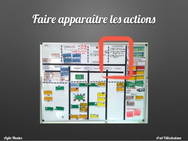 Faire apparaître les actions Axel VillechalaneAgile Nantes
