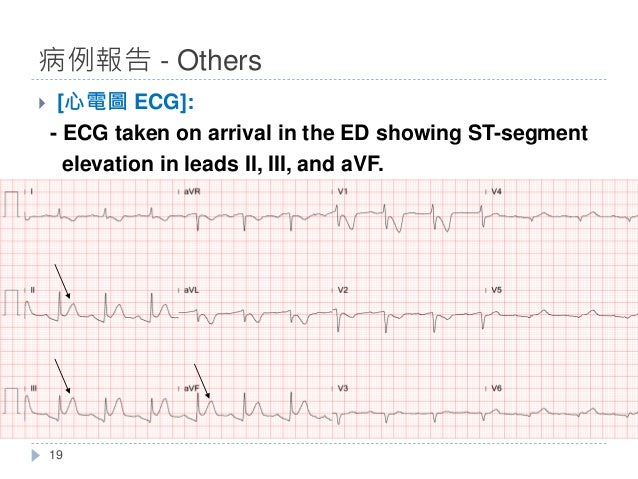 } [心電圖 ECG]: - ECG taken on arrival in the ED showing ST-segment elevation in leads II, III, and aVF. 病例報告 - Others 19