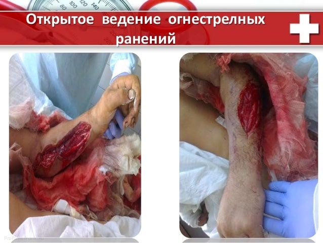 ProPowerPoint.Ru Открытое ведение огнестрелных ранений