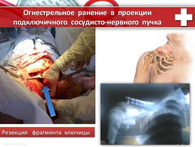 ProPowerPoint.Ru Огнестрельное ранение в проекции подключичного сосудисто-нервного пучка Резекция фрагмента ключицы