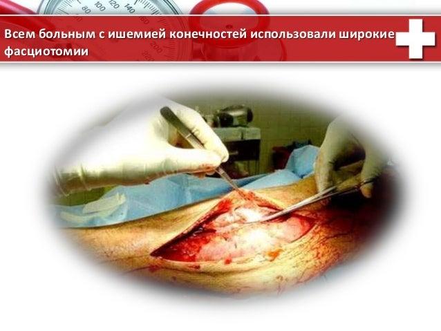 ProPowerPoint.Ru Всем больным с ишемией конечностей использовали широкие фасциотомии .
