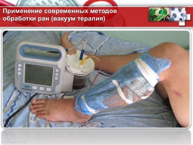 ProPowerPoint.Ru Применение современных методов обработки ран (вакуум терапия)