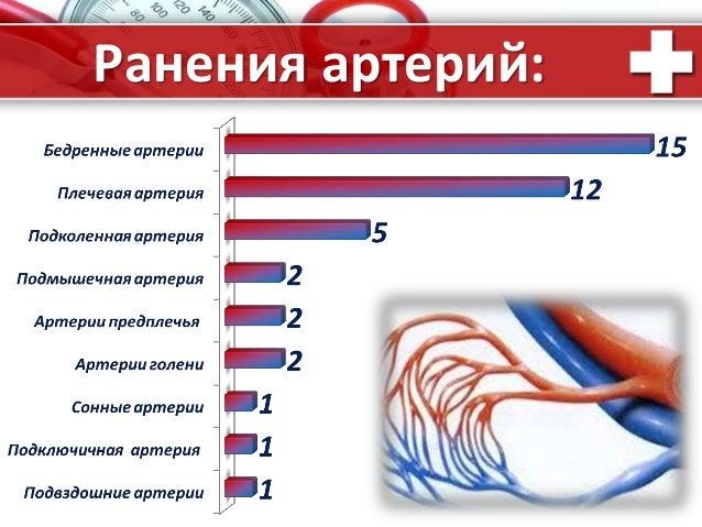 ProPowerPoint.Ru Ранения артерий: