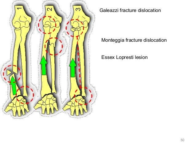 Emergency Radiology: Shoulder & Upper Extremities