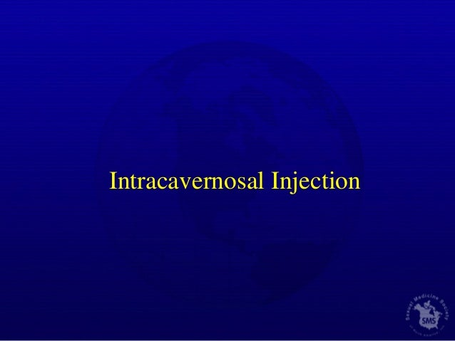 Where To Inject Intracavernosal Injections : Erectile dysfunction new paradigms in treatment