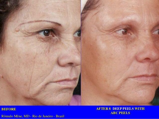 Tratamiento de anti envejecimiento para el hogar para todos los colores de piel, todas las idades, todas las condiciones. ...