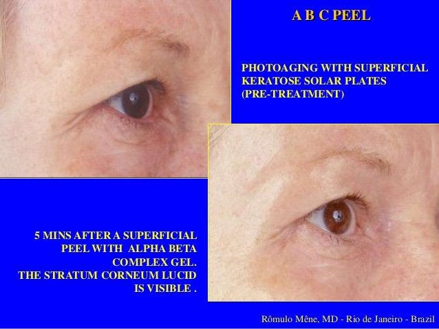 ABC Peel Acido Glicólico al 30% Rômulo Mêne, MD - Rio de Janeiro, Brasil Ademas el paciente disfrutará de los beneficios d...