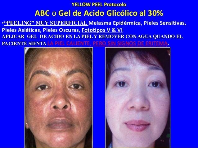 Apha Beta Complex Gel (ABC) O Gel de Acido Glicólico al 30% 3. REMOVER COM AGUA FRESCA QUANDO LLEGUE A LA PROFUNDIDADE DES...