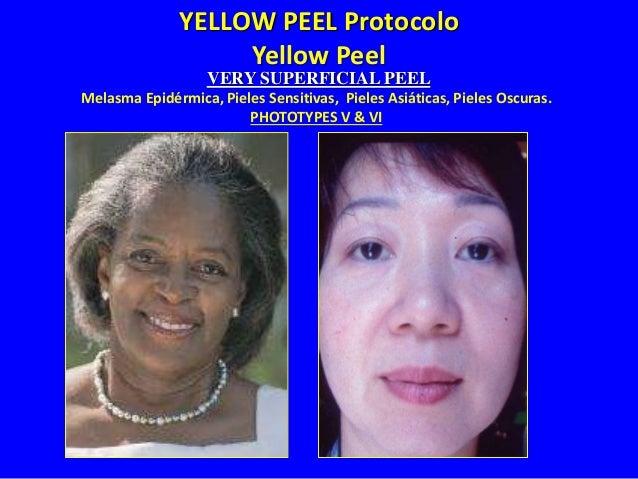 YELLOW PEEL Protocolo Yellow Peel Protocolo de Peeling Superficial • Indicado para foto envejecimiento INICIAL. • Fototipo...