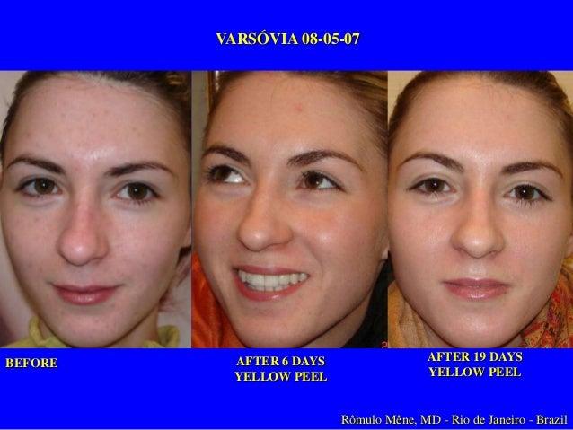 Tratamiento Professional – Yellow Peel Superficial Arrugas Superficiales/Envejecimiento Inicial Fototipo V Yellow Peel 1-6...