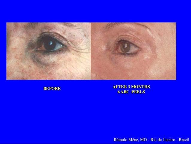 ABC Peel Acido Glicólico al 30% El Acidido Salicilico eres lipófilo, tiene atraction a grasa, permitindo destapar los poro...