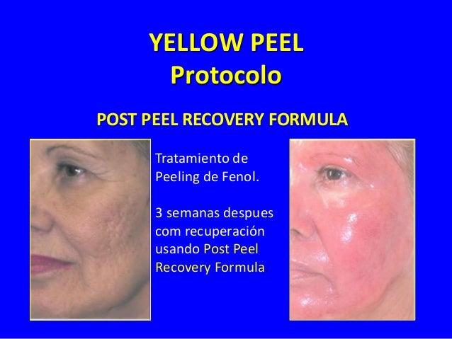Tratamiento Professional – Yellow Peel Profundo Arrugas Medianas / Envejecimiento Mediano Fototipo I y II Yellow Peel 2-6 ...
