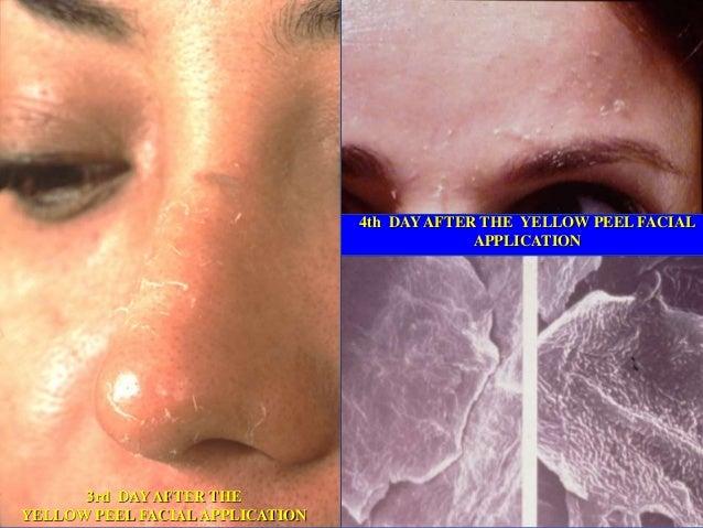 Tratamiento Professional Arrugas Profundas / Envejecimiento Severo Fototipo I y II Yellow Peel 6-8 Tratamientos 6-8 Meses ...