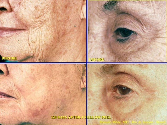 21 June 2001 30 March 2005 8 days after ABC PEEL/ YELLOW PEEL FACIAL 30 March 2005 30 March 2005 Rômulo Mêne, MD - Rio de ...