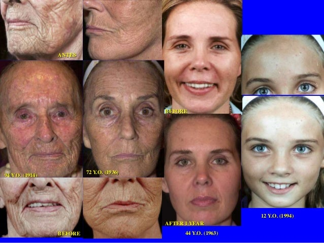 Anti-Aging treatments by Skin Renu and Doctor's Program