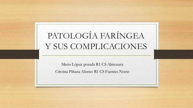 PATOLOGÍA FARÍNGEA Y SUS COMPLICACIONES Mario López posada R1 CS Almozara Cristina Piñana Alonso R1 CS Fuentes Norte