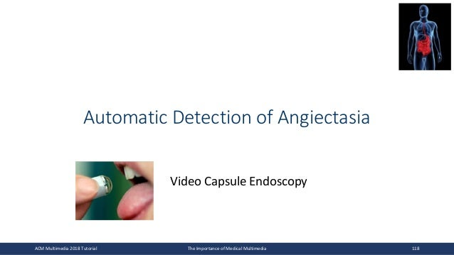 Automatic Detection of Angiectasia Video Capsule Endoscopy ACM Multimedia 2018 Tutorial The Importance of Medical Multimed...