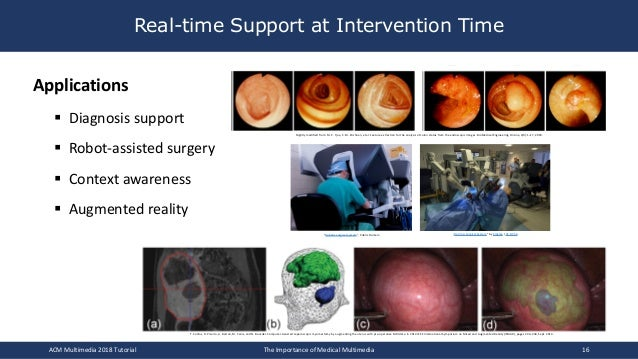 Real-time Support at Intervention Time Applications § Diagnosis support § Robot-assisted surgery § Context awareness § Aug...