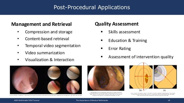 Post-Procedural Applications Management and Retrieval • Compression and storage • Content-based retrieval • Temporal video...