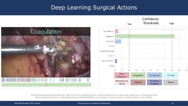 Deep Learning Surgical Actions ACM Multimedia 2018 Tutorial The Importance of Medical Multimedia 51 Confidence Thresholdsl...