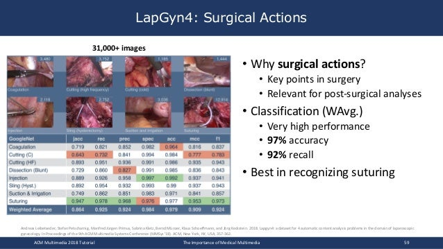 LapGyn4: Surgical Actions ACM Multimedia 2018 Tutorial The Importance of Medical Multimedia 59 Andreas Leibetseder, Stefan...
