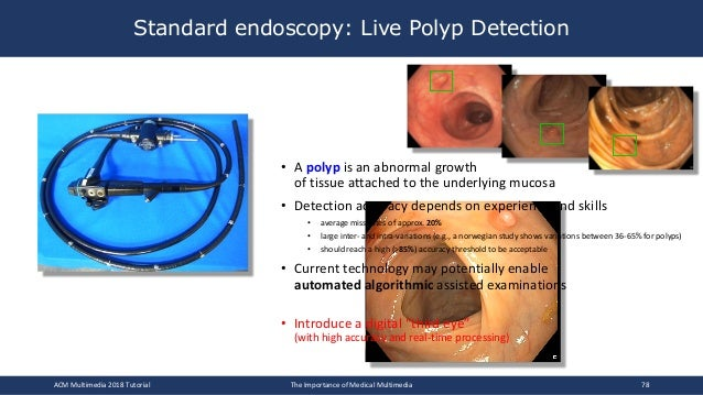 • A polyp is an abnormal growth of tissue attached to the underlying mucosa • Detection accuracy depends on experience and...