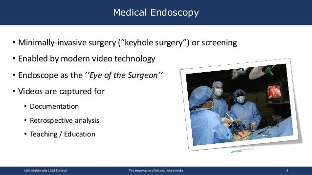 """• Minimally-invasive surgery (""""keyhole surgery"""") or screening • Enabled by modern video technology • Endoscope as the ''Ey..."""