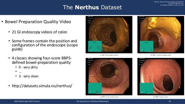 • Bowel Preparation Quality Video • 21 GI endoscopy videos of colon • Some frames contain the position and configuration o...