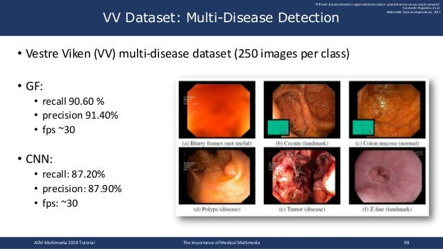 • Vestre Viken (VV) multi-disease dataset (250 images per class) • GF: • recall 90.60 % • precision 91.40% • fps ~30 • CNN...