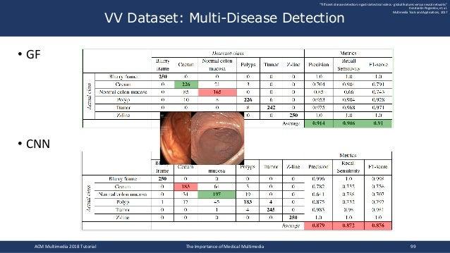 "• GF • CNN VV Dataset: Multi-Disease Detection """"Efficient disease detection in gastrointestinal videos - global features ..."