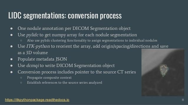 Standardized representation of the LIDC annotations using DICOM