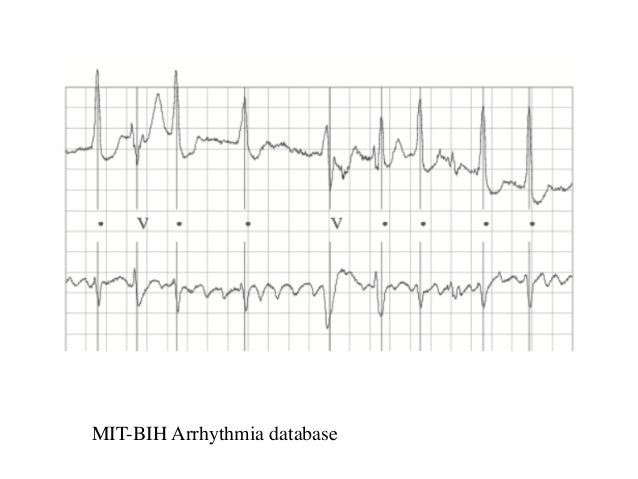 MIT-BIH Arrhythmia database