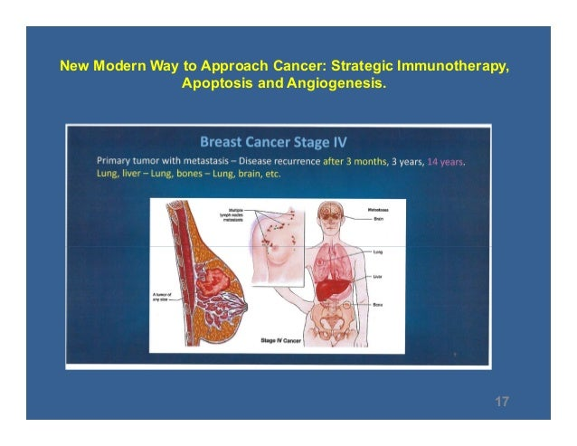 How To Understand And Treat Cancer With Modern Methods Public Presen