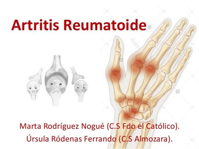 Artritis Reumatoide Marta Rodríguez Nogué (C.S Fdo el Católico). Úrsula Ródenas Ferrando (C.S Almozara).